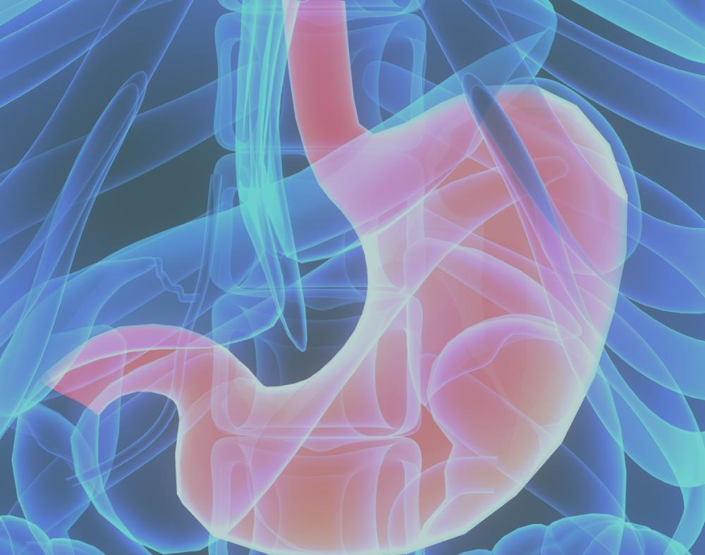 Conheça a técnica de Gastrectomia Vertical, ou Sleeve