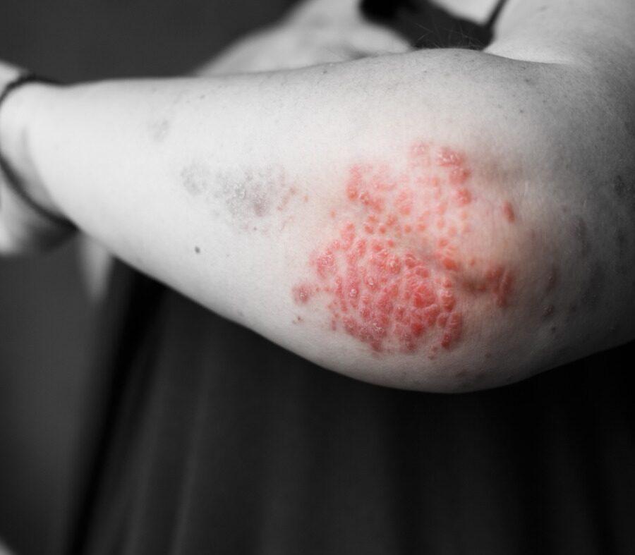 Dermatite Atópica: o que é, seus sintomas, como tratar e prevenir.